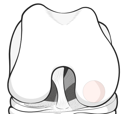osteochondral defect