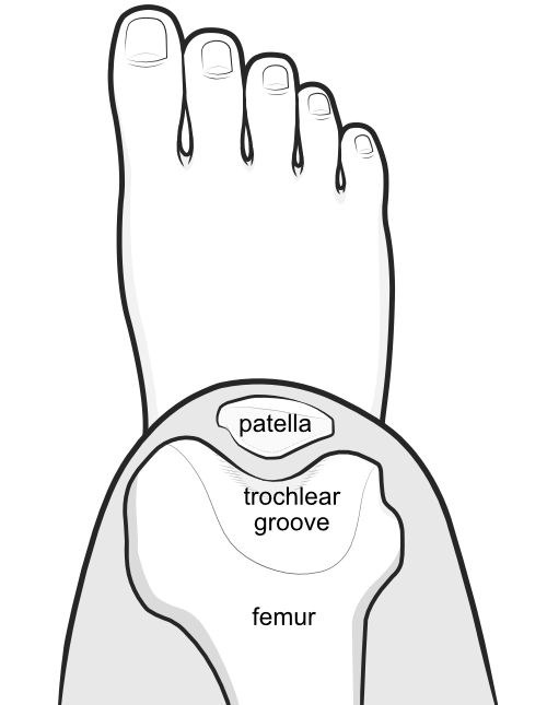 patella located within the walls of the trochlear groove