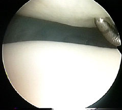 early chondromalacia or softening of of articular cartilage of knee