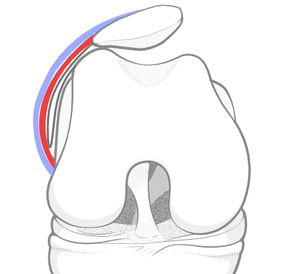 lateral patellar tilt