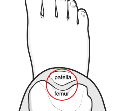 patellofemoral joint