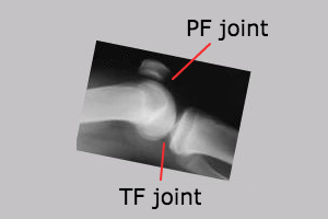 patellofemoral and tibiofemoral joints