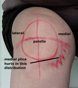 site of pain from a synovial plica on the medial side of the knee