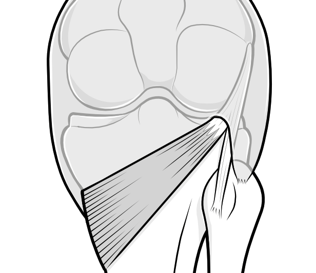 popliteus muscle and tendon passing through knee capsule at the back of the knee