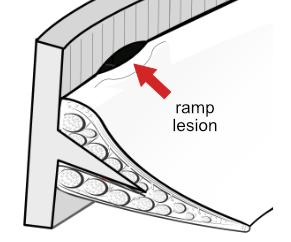 ramp lesion of menisco-capsular junction