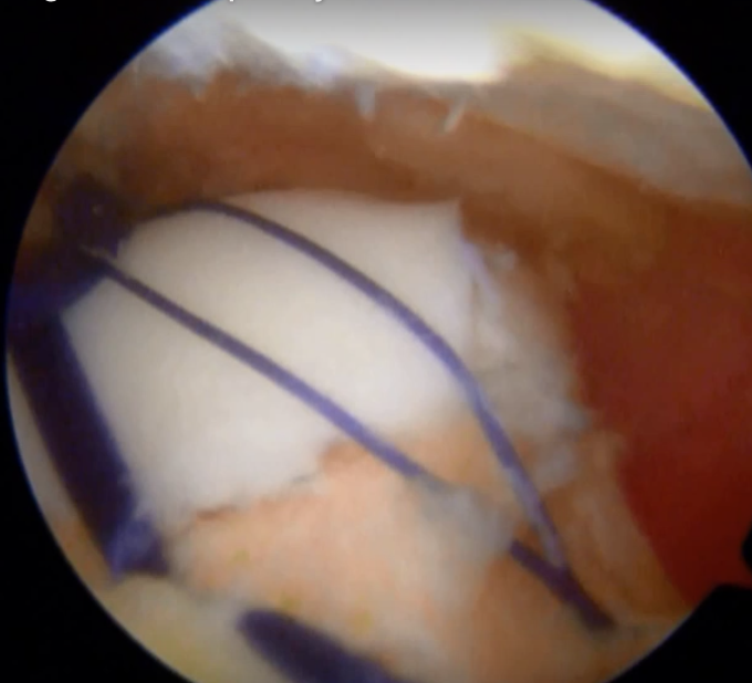 arthroscopic trochleoplasty with tapes in place