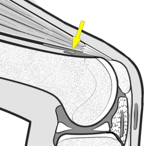 suprapatellar plica being nipped between quads and femur