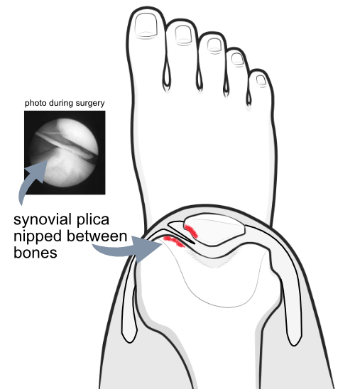 synovial plica being nipped