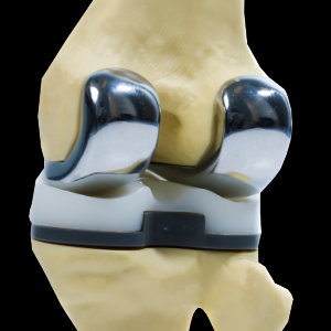 TKA - toal knee arthroplasty