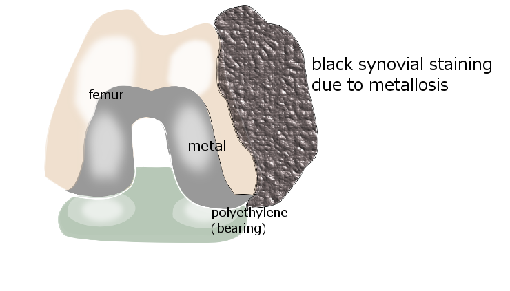 What are the common symptoms of metallosis?